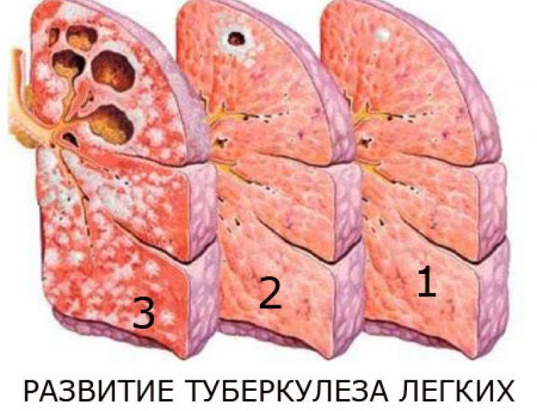 Туберкулёз лёгких