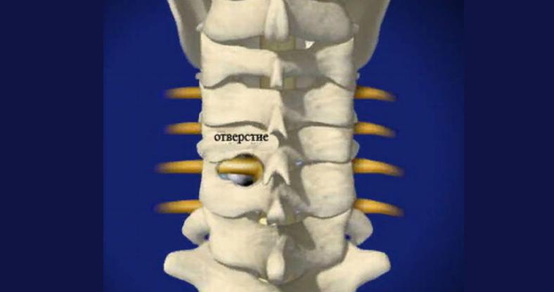 Фораминотомия — хирургическое удаление кости для расширения позвоночного канала и снятия давления на нервы в месте выхода нервных корешков из позвоночного канала