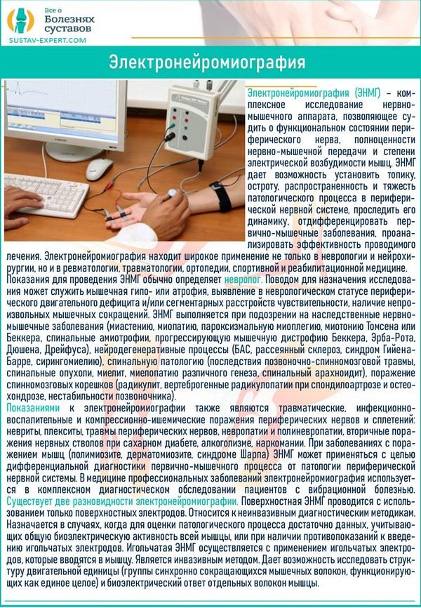 Электронейромиография