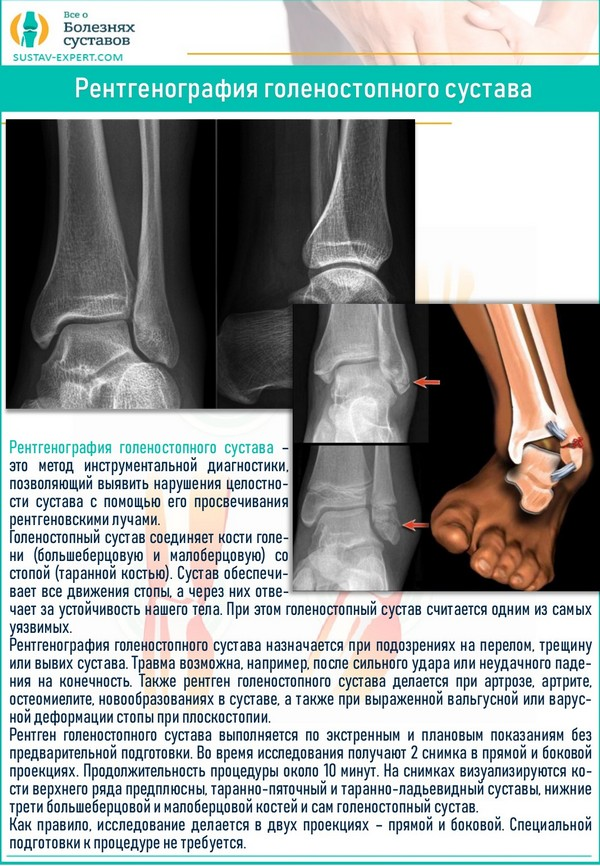 Рентгенография голеностопного сустава
