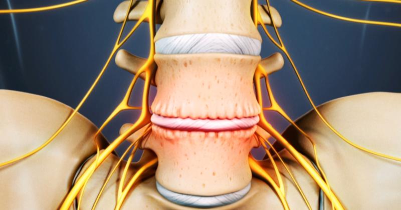 Остеохондроз — комплекс дистрофических нарушений в суставных хрящах