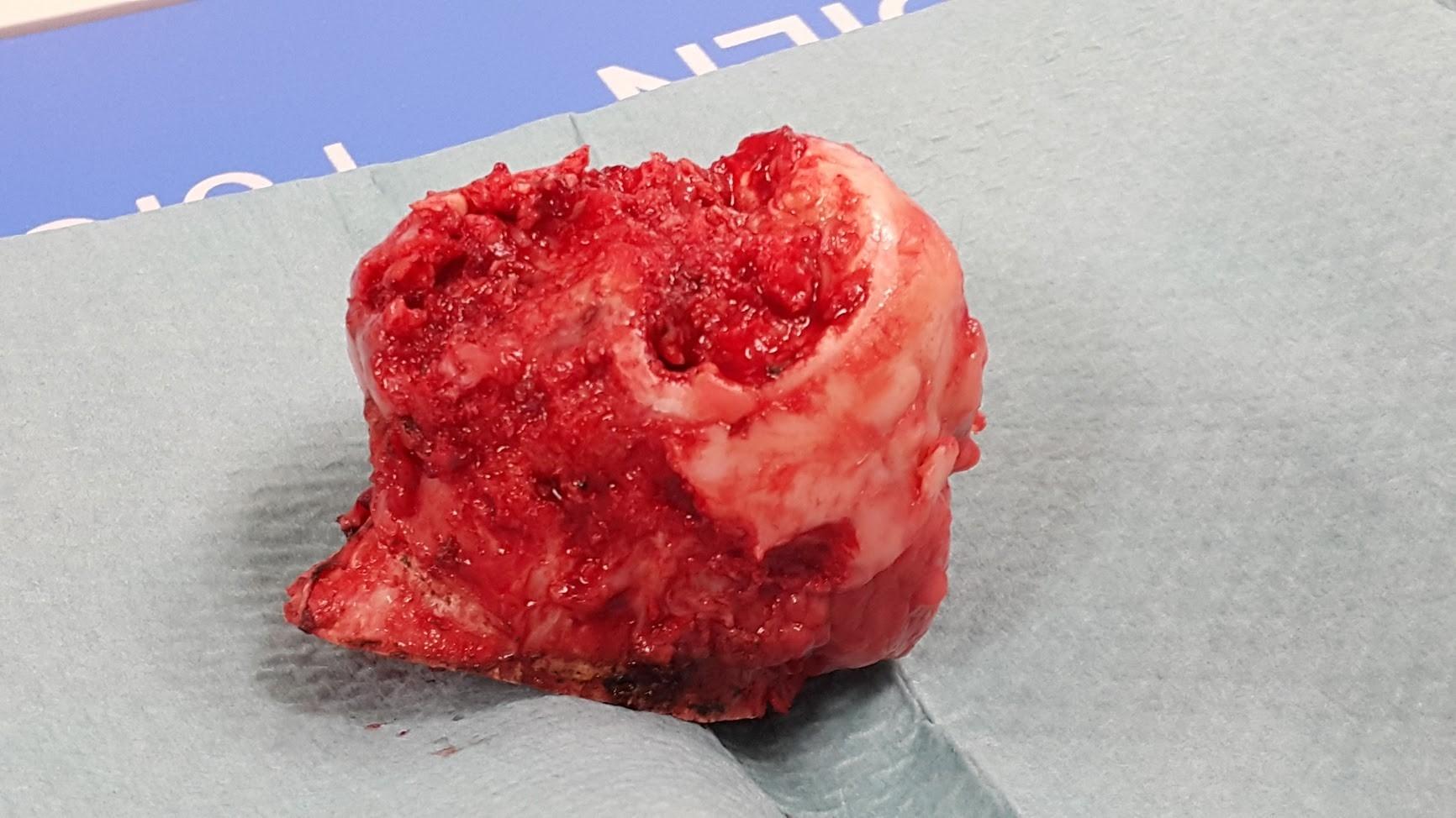 Разрушена значительная часть головки бедра в ее наиболее нагружаемой части, суставной хрящ отсутствует, имеется укорочение ноги вследствие разрушения головки