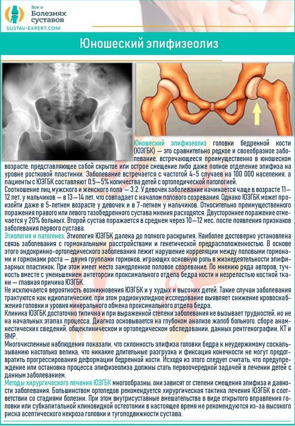 Юношеский эпифизеолиз