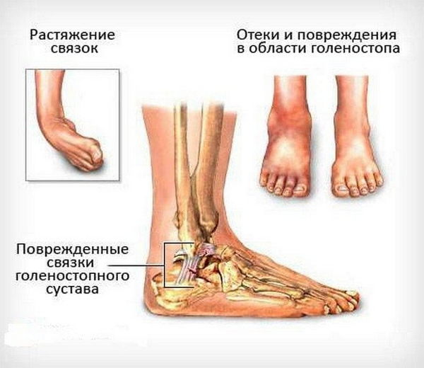 Растяжение связок голеностопа: лечение