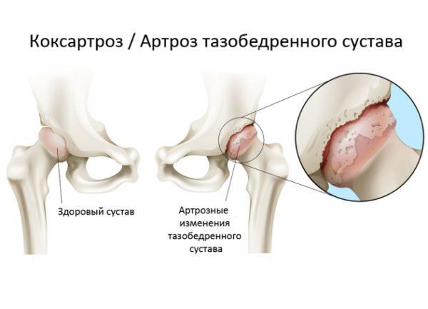 Важно отличить коксартроз от других патологий, связанных с суставами