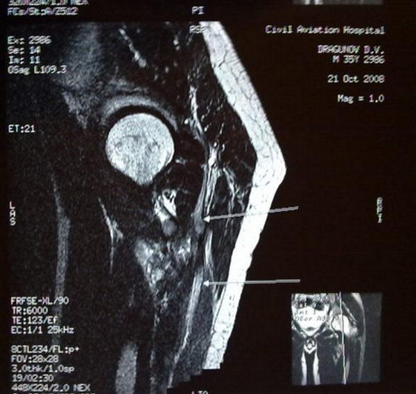 МРТ седалищного нерва