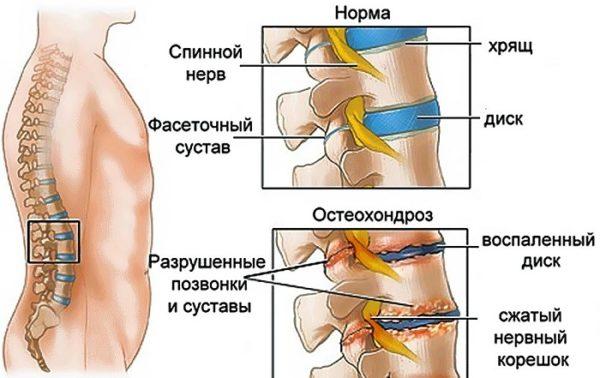 Часто остеохондроз диагностируется одновременно с коксартрозом