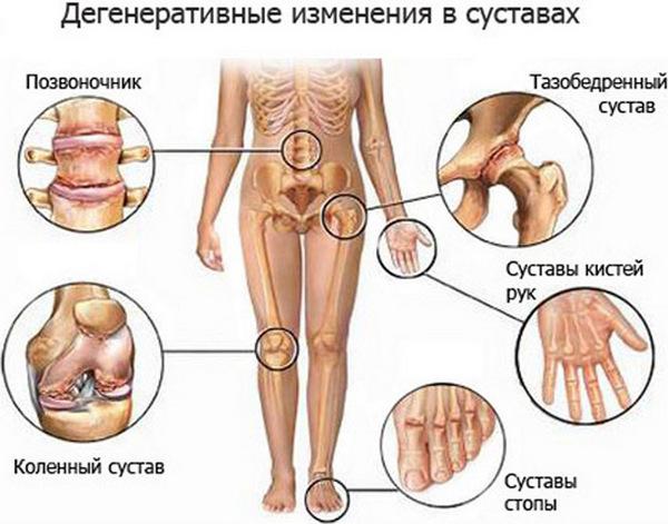 Симптомы болезни Бехтерева могут быть похожи на проявления коксартроза