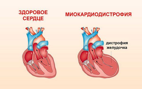 Миокардиодистрофия