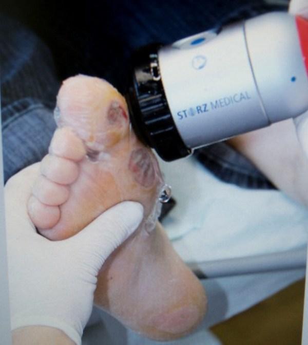 С помощью ударно-волновой терапии можно привести кровообращение в норму