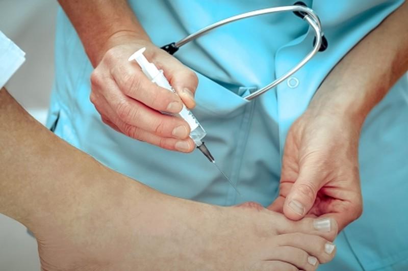 Увы, всемогущая народная медицина в вопросе лечения деформации большого пальца стопы бессильна. Примочки, ванночки, компрессы и йодные сеточки могут принести лишь кратковременное облегчение измученным ногам, немного сняв боль. Но выпирающая косточка на большом пальце ноги - проблема ортопедическая, и решить ее под силу только врачу. Наиболее эффективным методом лечения «шишек» на ноге является хирургическая коррекция. Существует более 30 методик, наиболее распространенная - остеотомия — укорочение первой плюсневой кости и возвращение пальца в нормальное положение