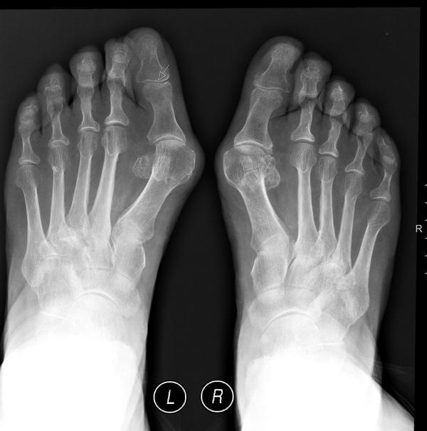 Для диагностики патологии нужен рентген