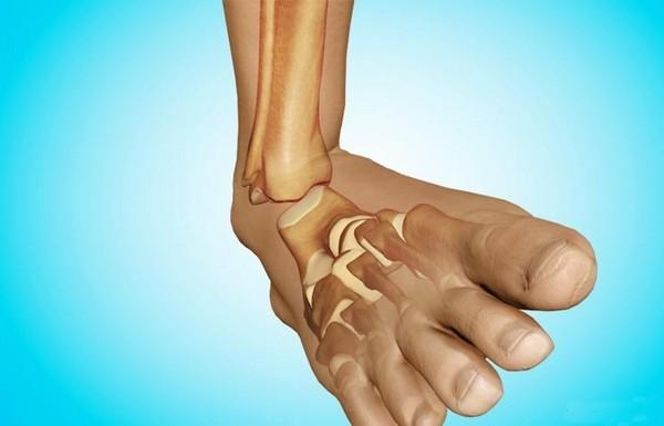 По характеру разрыва связок или сухожилия травмы распределяют по степени поражения