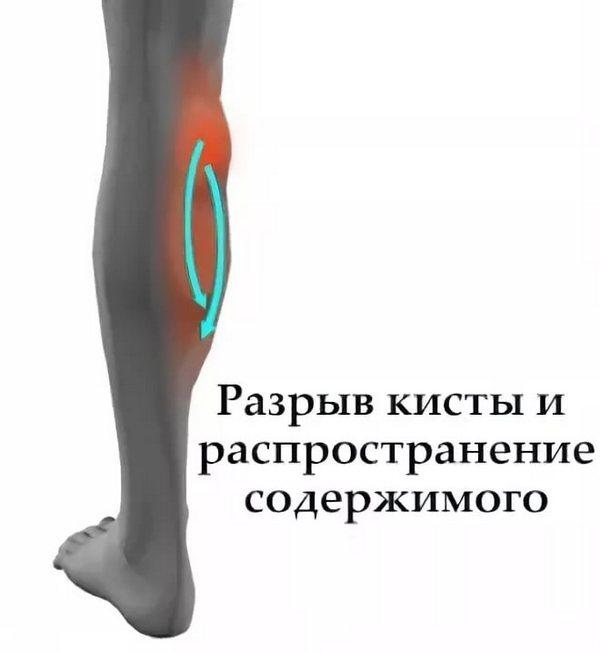 При разрыве кисты может возникнуть септическое воспаление