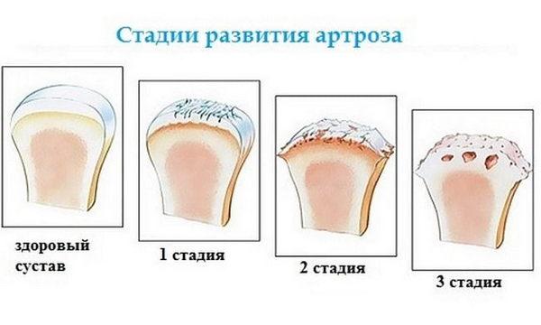 Выделяют несколько стадий деформирующего артроза