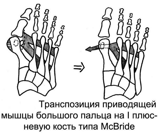 Операция МакБрайда