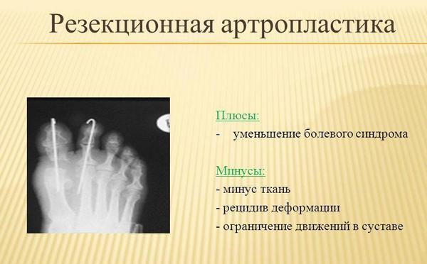 Резекционная артропластика