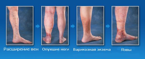 Стадии развития варикоза