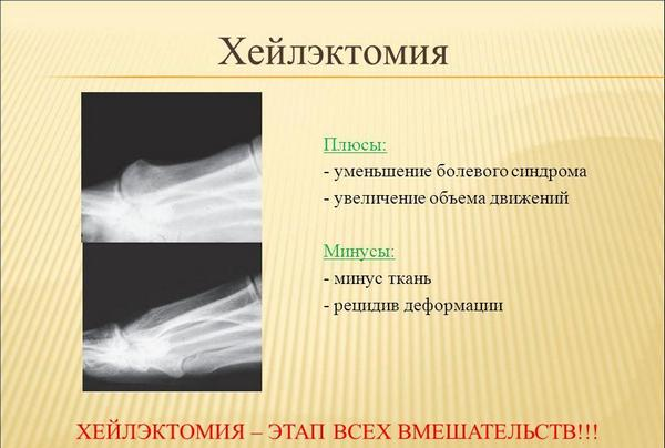 Хейлэктомия