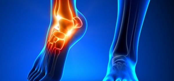 Можно сравнить обе конечности, чтобы диагностировать наличие травмы