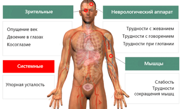 Блокада седалищного нерва не может быть проведена, если у человека есть миастения