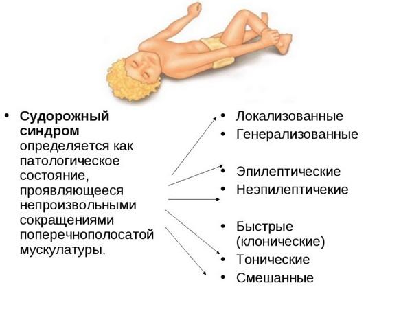 О судорожном синдроме