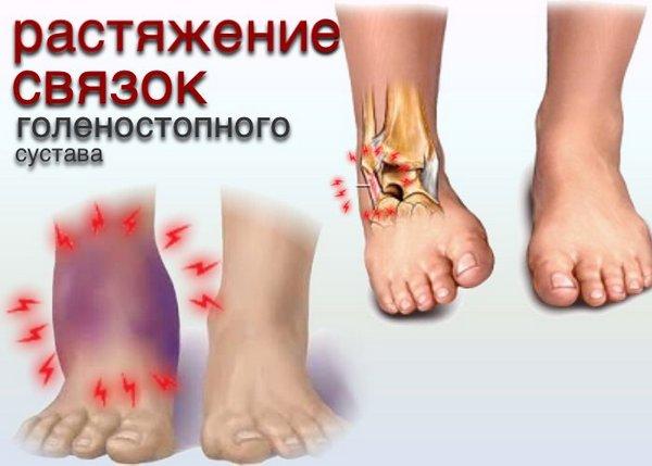 Если произошел полный разрыв сухожилия, человек не сможет поворачивать стопу