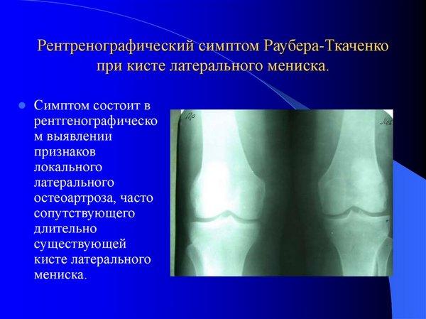 Симптом Раубера-Ткаченко