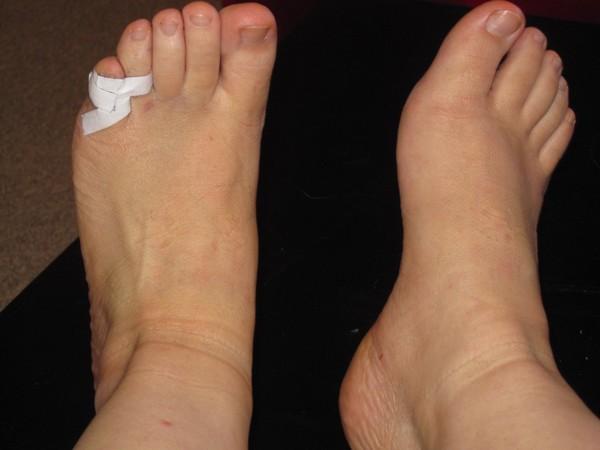 При возникновении небольших травм стоит перевязать поврежденный палец со здоровым