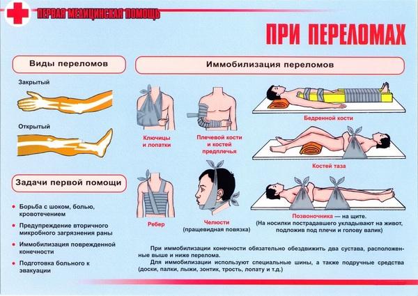 После получения перелома человека нужно уложить на твердую ровную поверхность