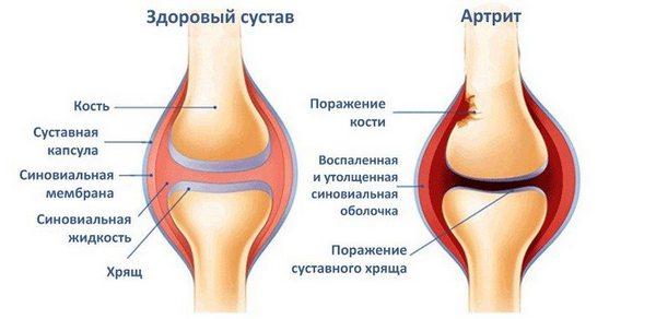У людей с артритом риск разрыва мениска выше