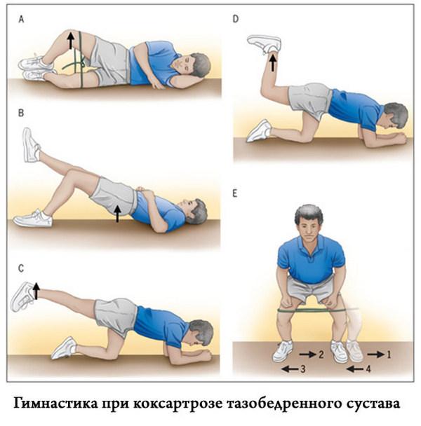 Лучше заниматься гимнастикой под присмотром врача