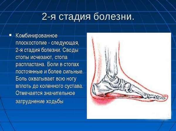 Комбинированная деформация стопы