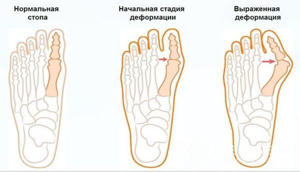 Есть несколько стадий вальгусной деформации стопы