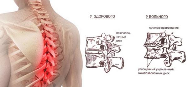 При остеохондрозе также может ощущаться боль в груди слева