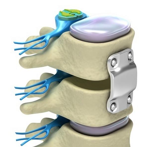 Костные трансплантаты в позвоночнике