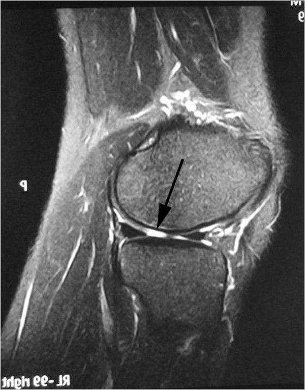 Если пациенту показано оперативное вмешательство, без МРТ не обойтись