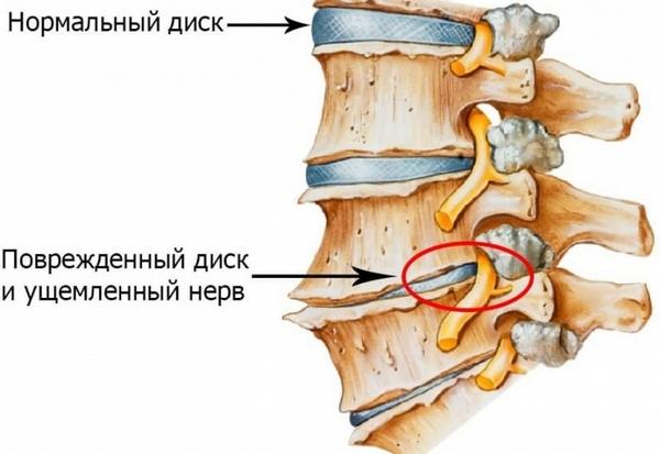 Чаще всего такие ощущения отмечаются при остеохондрозе шейного отдела