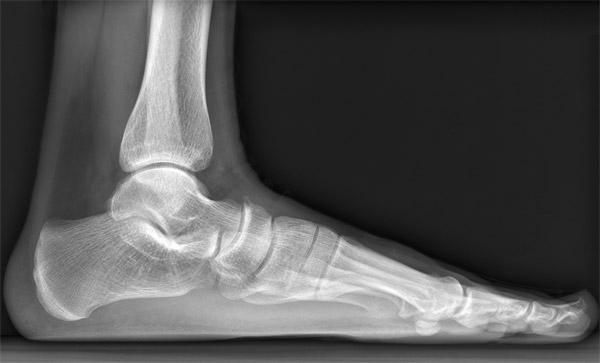 Рентген нижних конечностей