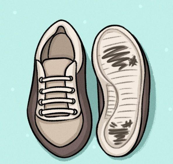 Можно определить такую деформацию и по состоянию обуви – она быстро изнашивается в области подошвы