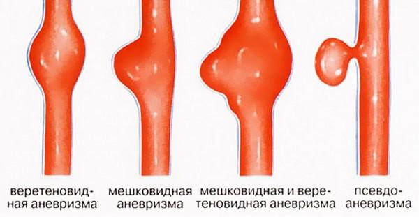 Аневризма бедренной артерии