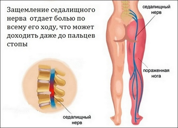 При воспалении ухудшается чувствительность кожи по ходу седалищного нерва, возникает боль