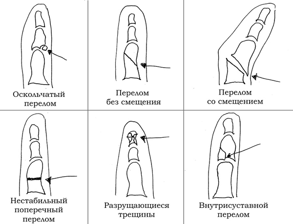 Виды переломов пальцев