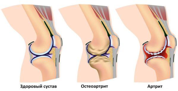 Боль может быть вызвана патологическими изменениями суставов