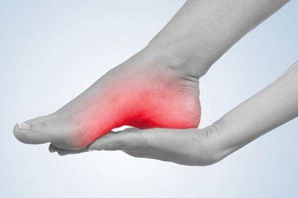 Если какой-либо из суставов стопы повреждается, человек испытывает боль