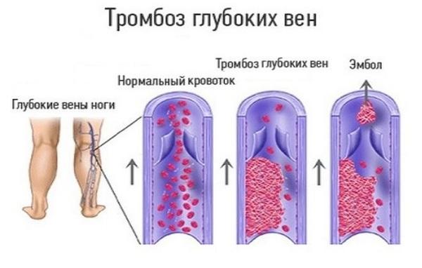 Компрессионная терапия противопоказана при тромбозе вен