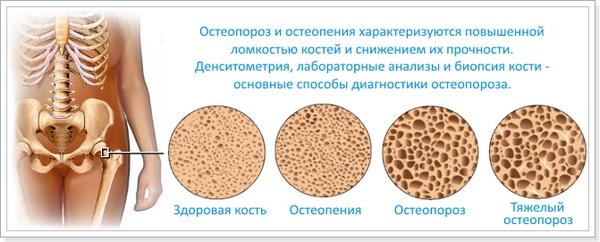 Возникнуть вальгусная деформация стопы может из-за остеопороза