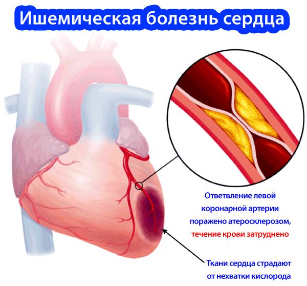 Ишемическая болезнь миокарда