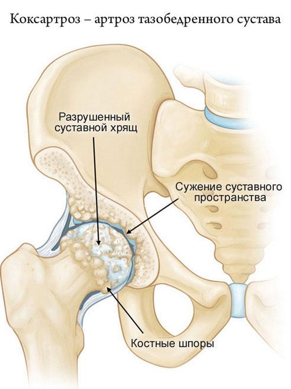 При коксартрозе хрящи становятся тонкими из-за того, что они повреждают друг друга при движении