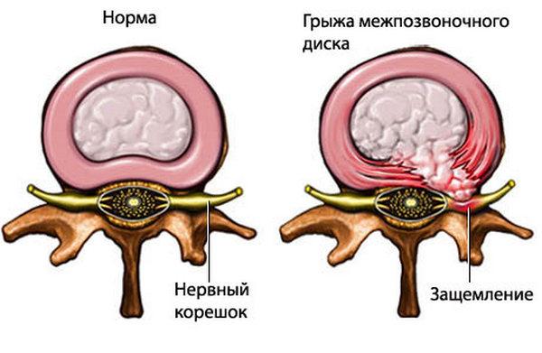 Операцию проводят при межпозвоночной грыже